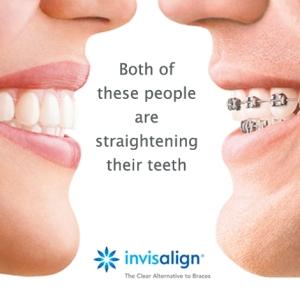 versus braces